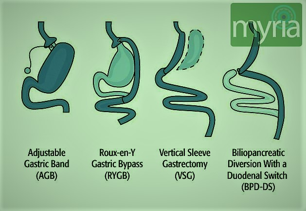 After Gastric Bypass Weight Loss Differs By Ethnicity Myria