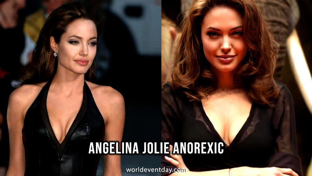 Angelina Jolie Anorexic