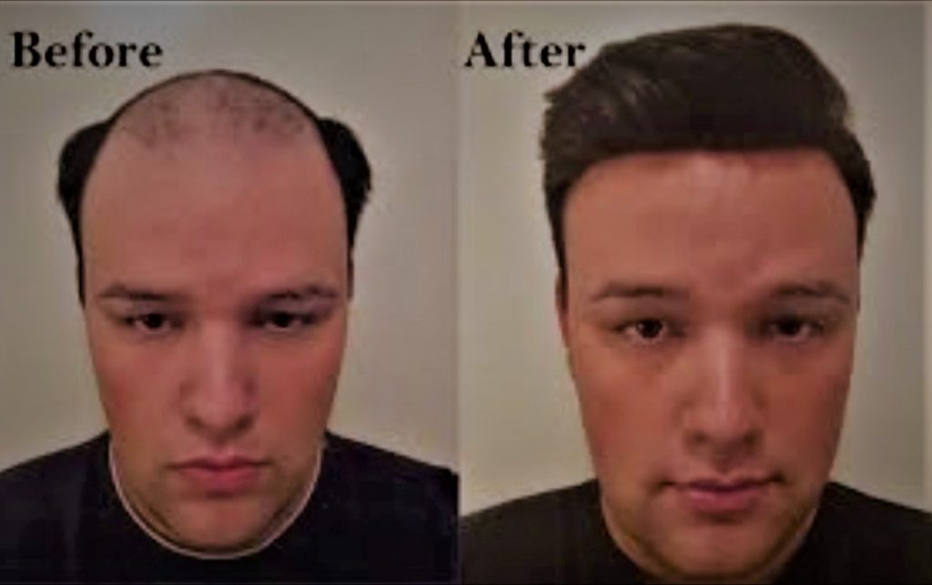 Can Extreme Weight Loss Cause Hair Loss Ayurvedic Cure For Thinning Hair