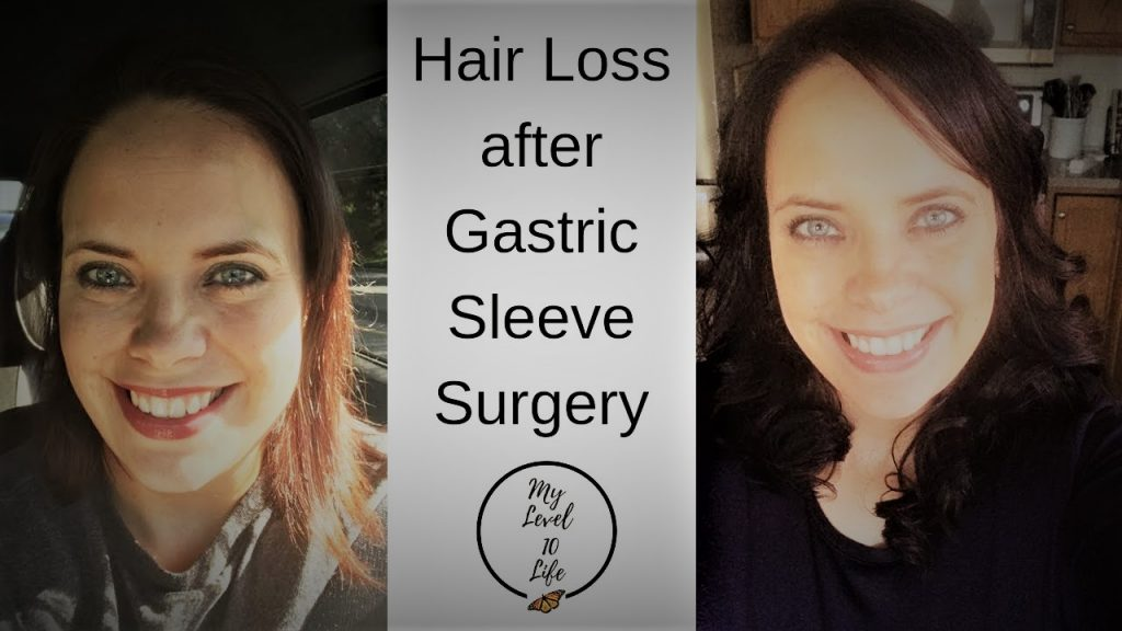 Hair Extensions Hair Loss After Weight Loss Surgery Vsg
