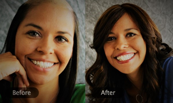 Hair- Loss after Weight Loss Surgery