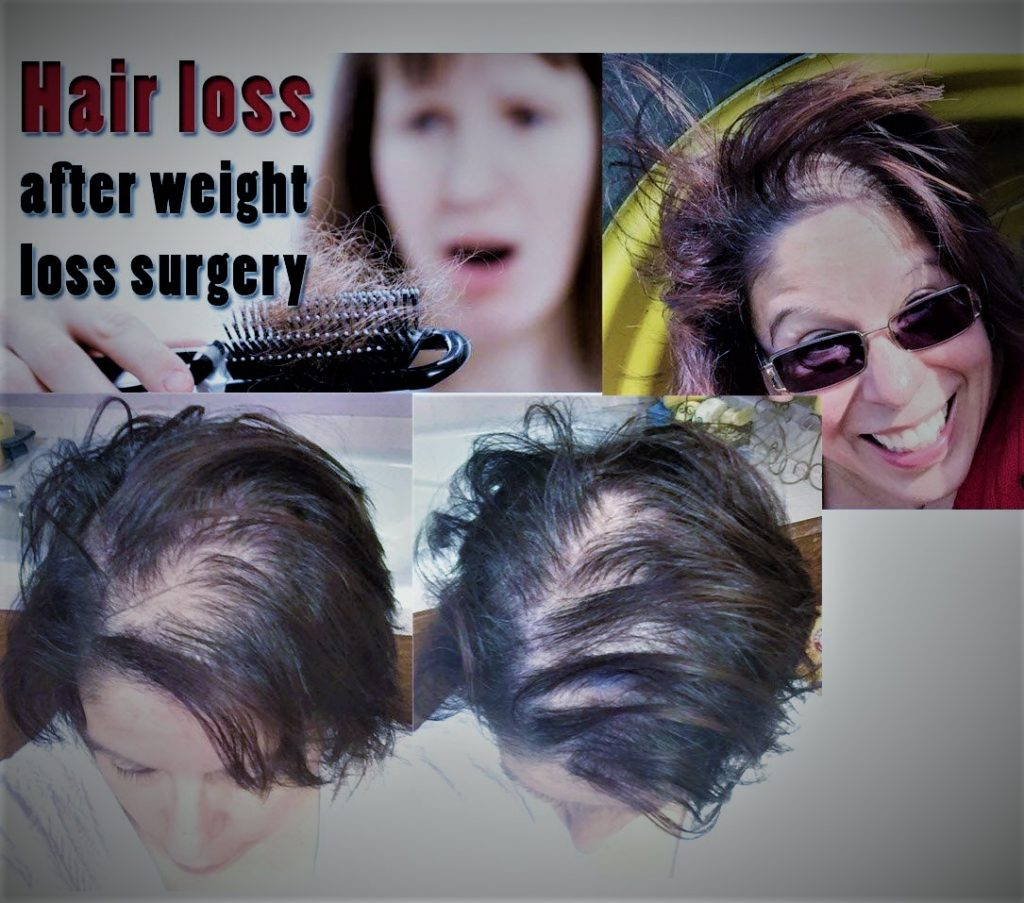 Pin On Bariatric Weight Loss Surgery