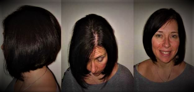Weight Loss Hair Loss Problems How To Prevent It