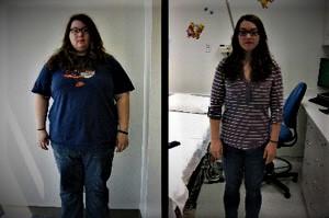 weight loss surgery kaiser