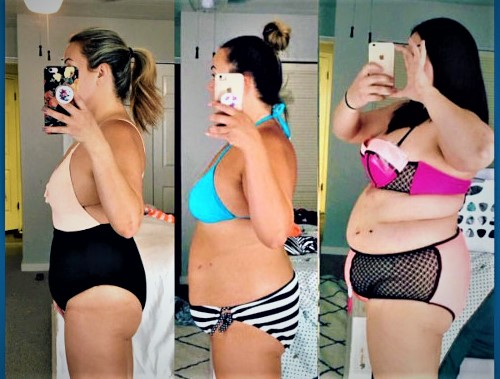 Before and After Sleeve Gastrectomy Danielle weight loss