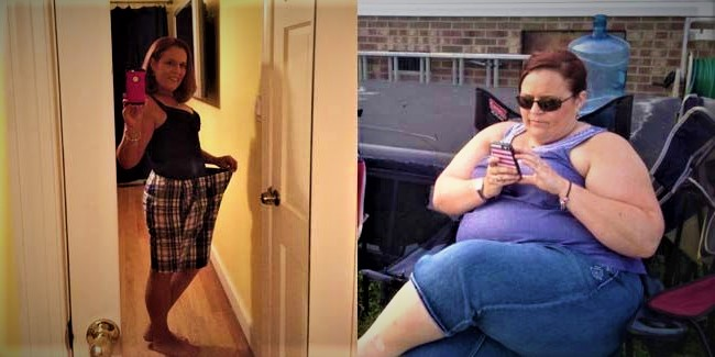 weight loss without surgery stories